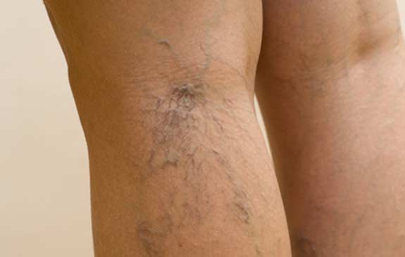 Spider-Veins-back-of-knee-1
